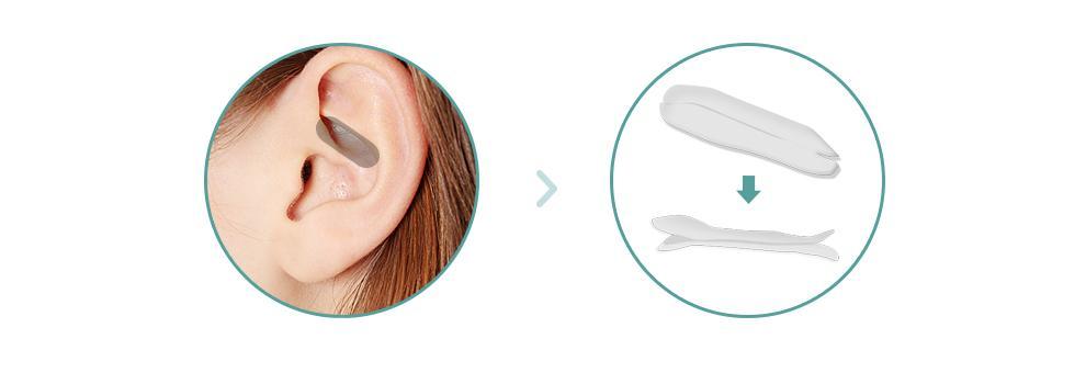 C-1 Soft Nasal Surgery-image 3 below1