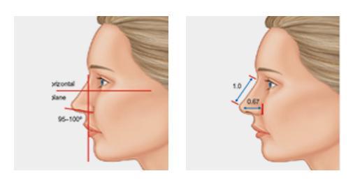 C-1 Soft Nasal Surgery-image 8