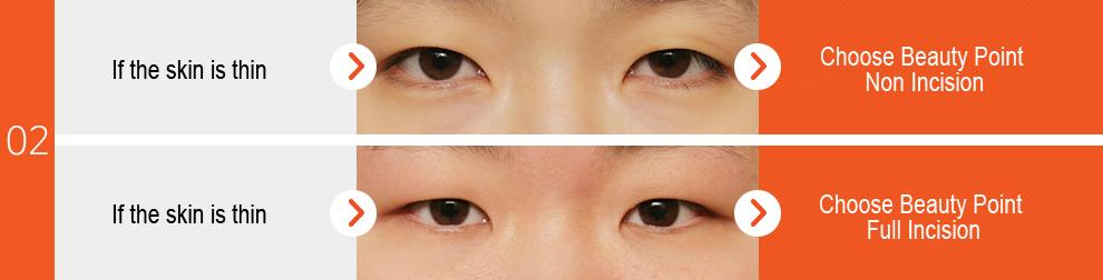 D-1 Beauty Point Eye Surgery-image 4