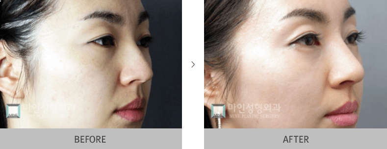 Nose Surgery Before and After 1