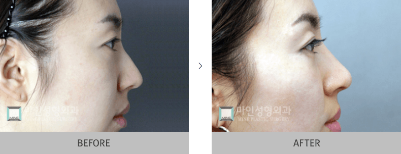 Nose Surgery Before and After 2
