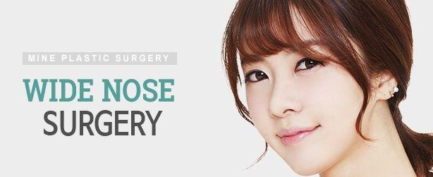 Wide Nose Surgery