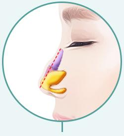 C-3 Soft Hump or Deviated surgery method image 1