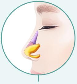 C-3 Soft Hump or Deviated surgery method image 2