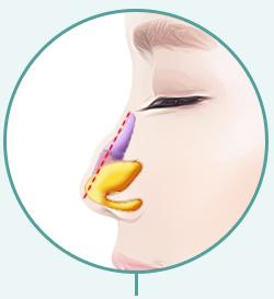 C-3 Soft Hump or Deviated surgery method image 5