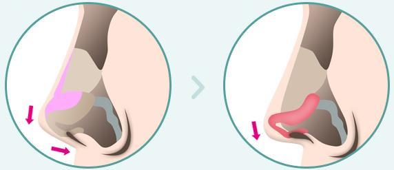 C-6 Short Nose Surgery method image 1