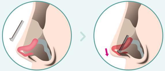 C-6 Short Nose Surgery method image 2