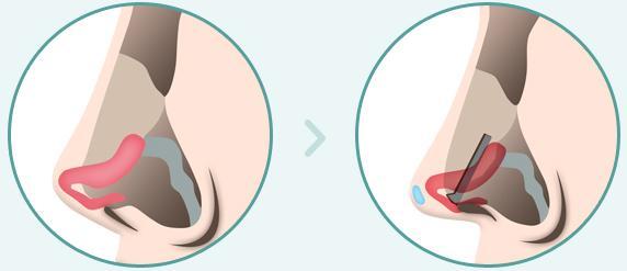 C-6 Short Nose Surgery method image 3