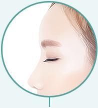 C-8 S-line Nose Surgery method image 4