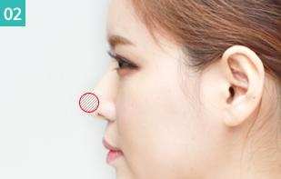 C-9 Rhinoplasty Implants Surgery-nasal tip surgery image 2