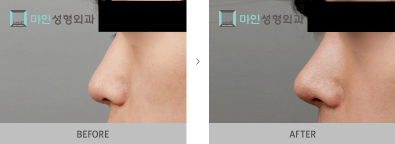 Rhinoplasty Implants Surgery Before and After 1