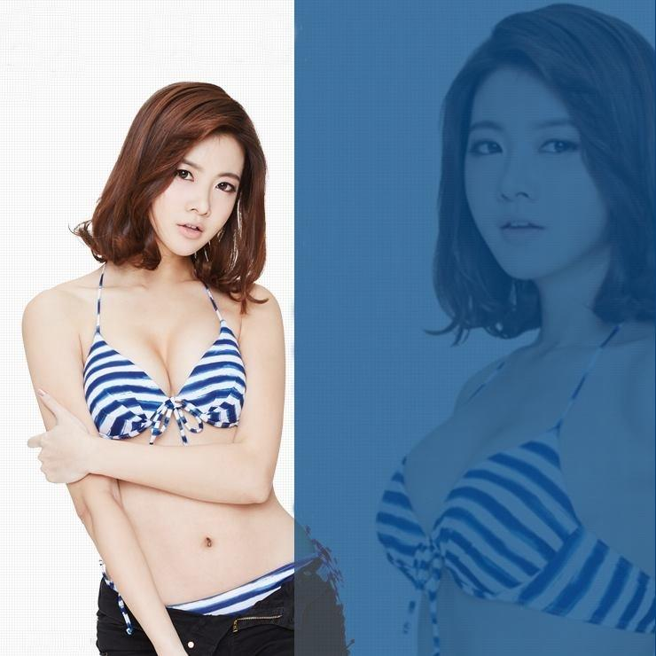 Korean Breast Augmentation