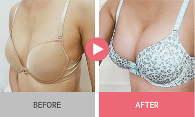 B-1 Water drop Endoscope Breast Surgery-before after image 3