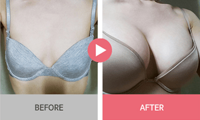 B-1 Water drop Endoscope Breast Surgery-before after image 4