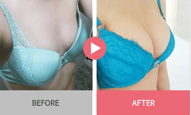 B-1 Water drop Endoscope Breast Surgery-before after image 5