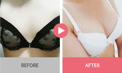 B-1 Water drop Endoscope Breast Surgery-before after image 6