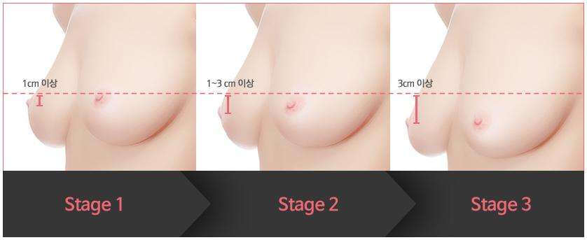 B-6 Breast Lifting Surgery-Droopy Diagnosis image