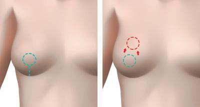 B-6 Breast Lifting Surgery-surgery method image 3