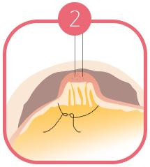 B-7 Nipple Surgery-non severe image 2
