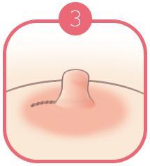 B-7 Nipple Surgery-non severe image 3