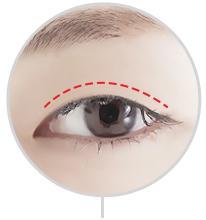 D-3 Incision Method partial incision image 1