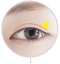 D-3 Incision Method partial incision image 2