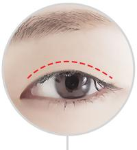 D-4 Ptosis Correction dual incision image 1