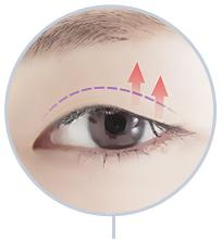 D-4 Ptosis Correction full incision image 3