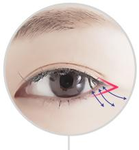 D-5 Canthoplasty Literal surgery image 2
