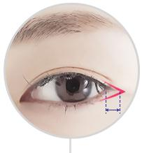D-5 Canthoplasty Literal surgery image 3
