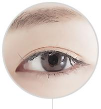 D-5 Canthoplasty Literal surgery image 4