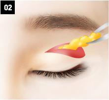 D-6 Upper Blepharoplasty method image 2