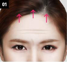 D-6 Upper-Lower forehead lifting image 1