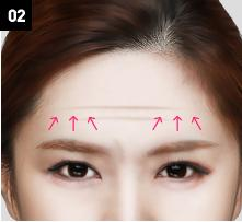 D-6 Upper-Lower forehead lifting image 2