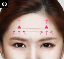D-6 Upper-Lower forehead lifting image 3