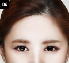 D-6 Upper-Lower forehead lifting image 4