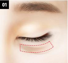 D-6 lower blepharoplasty Relocation of the fat-image 1