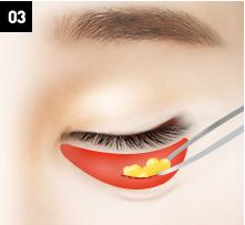 D-6 lower blepharoplasty Relocation of the fat-image 3