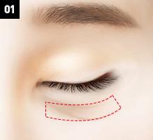 D-6 lower blepharoplasty below-image 1