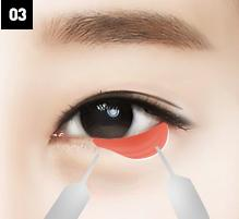 D-6 lower blepharoplasty below-image 3