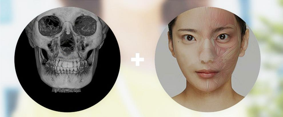 E-1 Facial Bone Contouring image 3