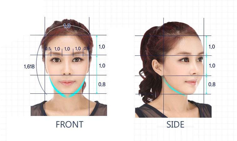 E-1 Facial Bone Contouring image 4
