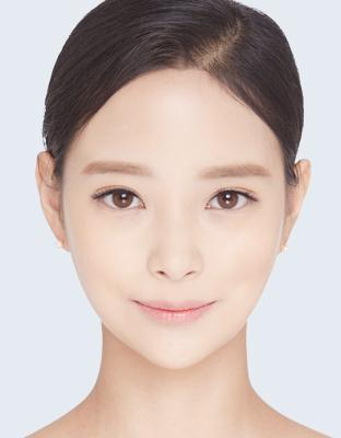 E-2 Square Jaw Reduction image 1