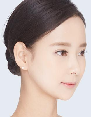 E-3 Cheekbone Reduction image 1