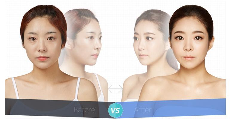 E-3 Cheekbone Reduction image 2