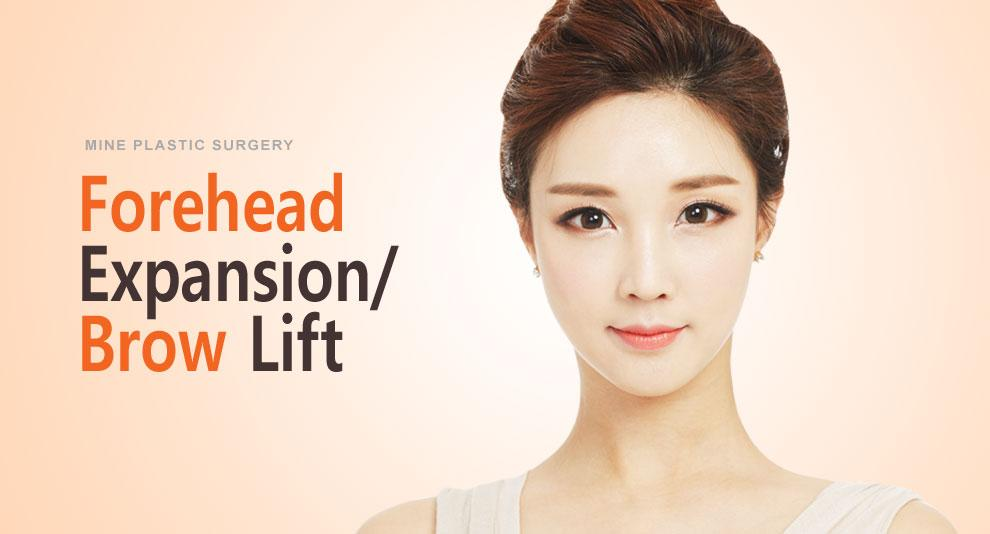 E-5-2 Forehead Expansion banner