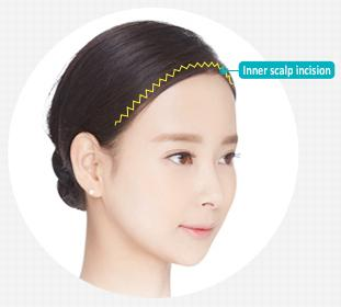 E-5-2 Forehead Expansion features 1