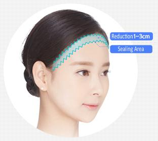 E-5-2 Forehead Reduction features 1
