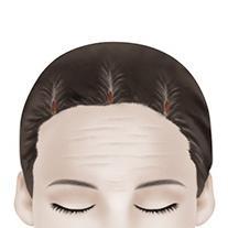 F-4 Endoscopic Forehead Lift method image 1