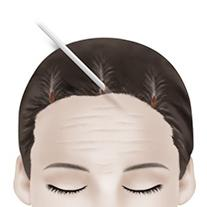 F-4 Endoscopic Forehead Lift method image 2
